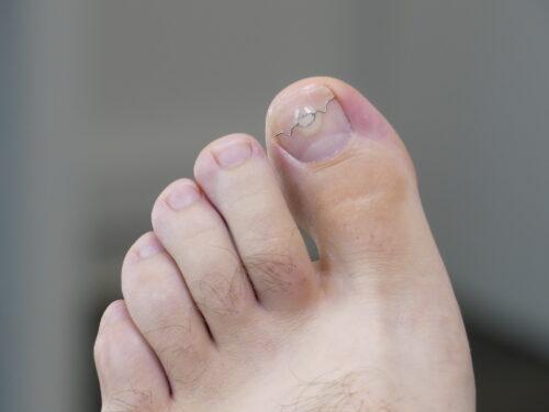 wrastający paznokieć leczenie